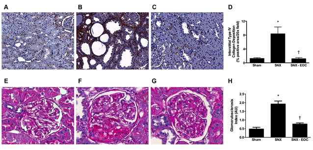 Figure 2. Renal fibrosis is attenuated by EOC therapy in the SNX rat.