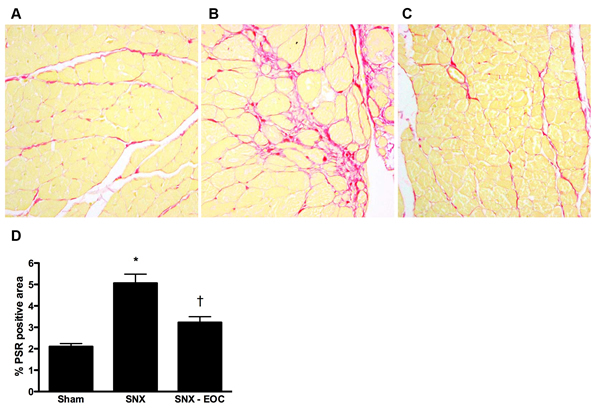Figure 4.  Cardiac fibrosis is attenuated by EOC therapy in the SNX rat.